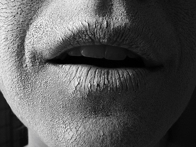 Incredibly dry, cracked lips